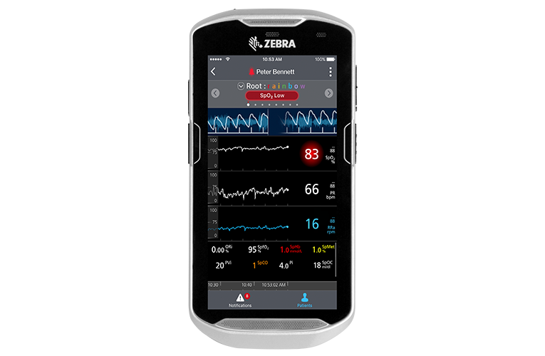 Masimo – Application mobile Replica