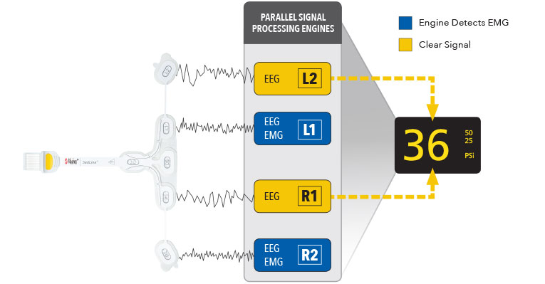 Masimo - Parallel Signal Processing Engines